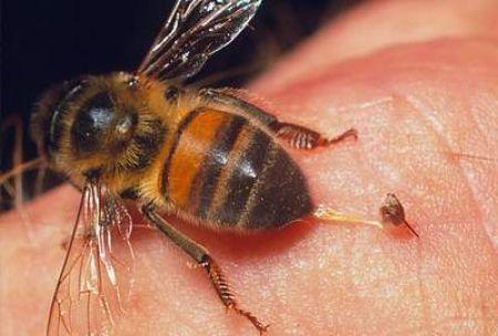 Ong mật khi đốt, ngòi cắm vào da người.