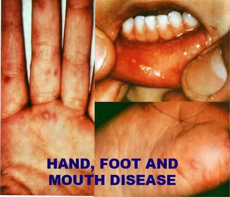 Bệnh tay chân miệng chủ yếu xảy ra với trẻ em, trường hợp người lớn mắc bệnh rất hy hữu.