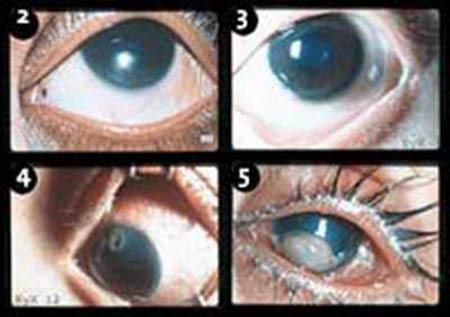 Khi phát hiện bị thiếu vitamin A cần phải điều trị cấp cứu theo phác đồ của OMS để tránh mù lòa cho trẻ.