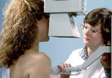 Xơ nang tuyến vú nguy hiểm đến mức nào? 1