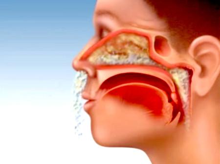 Rửa mũi bằng nước muối là cách tốt nhất để phòng ngừa viêm mũi
