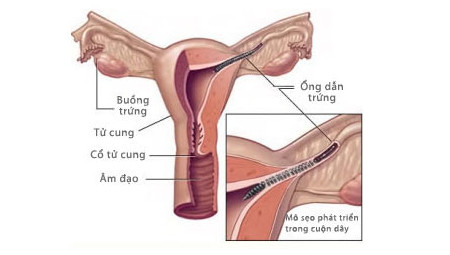 Essure được luồn qua tử cung vào vòi trứng, kích thích tạo mô sẹo, gây tắc ống này.