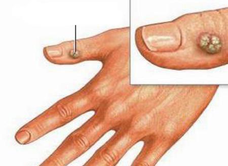 Hạt cơm ở ngón tay.