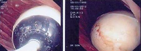 Hình ảnh bóng hơi trong dạ dày qua nội soi.