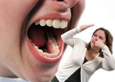 Bệnh nha chu là một nguyên nhân tại miệng gây mùi hôi.