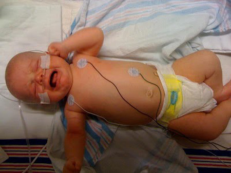 Nếu trẻ sơ sinh bị hạ đường huyết kéo dài sẽ ảnh hưởng nghiêm trọng tới sức khỏe, thậm chí bị tổn thương não.