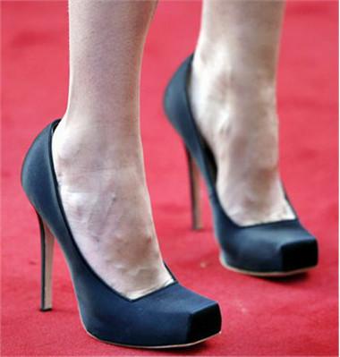 Hạn chế tác hại của giầy cao gót bằng cách nào? - Sức Khỏe - Chăm sóc sức khỏe - Sức khỏe phụ nữ