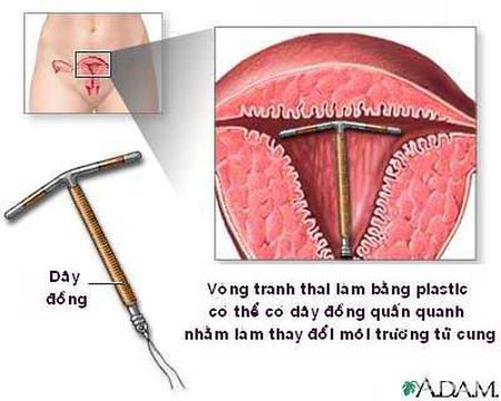 Cần theo dõi, kiểm tra thường xuyên đối với vòng tránh thai đang được sử dụng