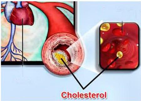Bạn phải duy trì mức cholesterol trong giới hạn có lợi cho sức khỏe.
