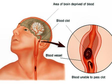 Nắng nóng làm tăng nguy cơ tai biến mạch máu não.