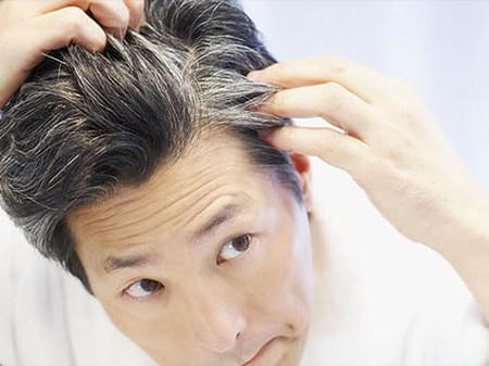 Có nhiều nguyên nhân dẫn đến tình trạng tóc bạc sớm