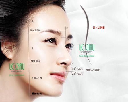 Nâng mũi theo tiêu chuẩn Hàn Quốc.