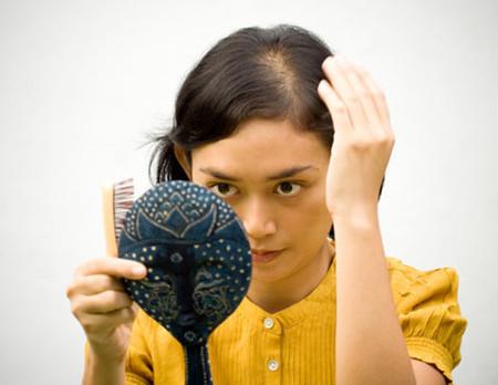 Căn bệnh về tóc khiến tôi không thể tìm được hạnh phúc cho mình