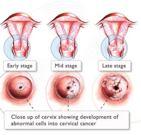 Bệnh ung thư cổ tử cung chủ yếu do hoạt động tình dục - Sức Khỏe - Bệnh ung thư cổ tử cung - Sức khỏe phụ nữ - Sức khỏe tình dục