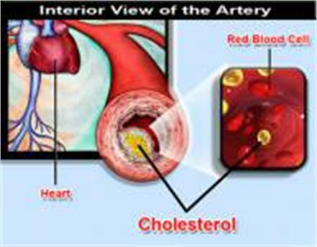 Nồng độ cholesterol trong máu cao là nguyên nhân chính của quá trình  xơ vữa thành động mạch.