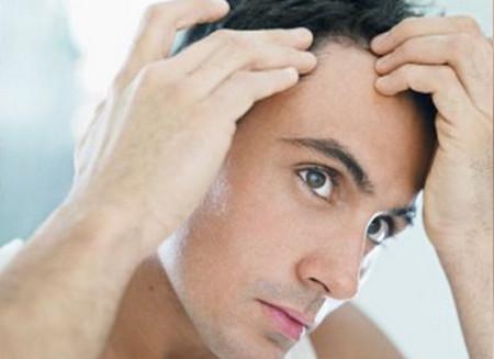 Đường chân tóc hớt ra sau trán, nếp nhăn ở dái tai... là dấu hiệu cảnh báo nguy cơ mắc bệnh tim mạch.