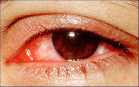Các triệu chứng của bệnh đau mắt đỏ có thể bao gồm: 1