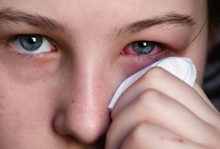 Đau mắt đỏ: Phòng bệnh hơn chữa bệnh 1