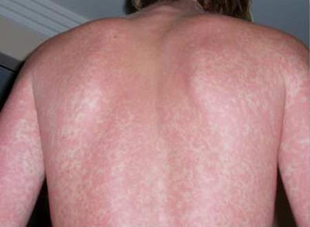 Dấu hiệu của bệnh sốt xuất huyết: 1