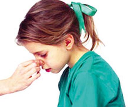 Những việc cần xử lý khi trẻ bị chảy máu cam: 1