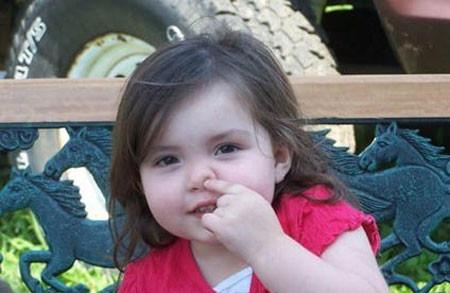 Nguyên nhân chủ yếu của việc trẻ bị chảy máu cam: 1