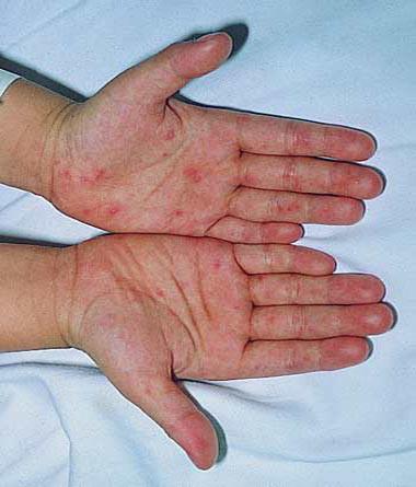 Phương pháp phòng tránh bệnh tay chân miệng 1