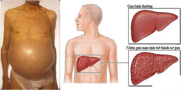 Một số bài thuốc nam điều trị xơ gan cổ trướng 1