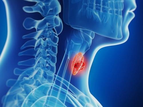 Thế nào là bệnh ung thư tuyến giáp dạng thể nhú 1