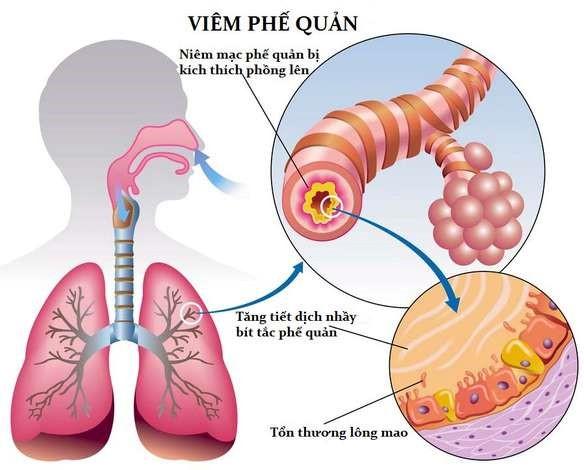 Phương pháp chẩn đoán bệnh viêm phế quản 1