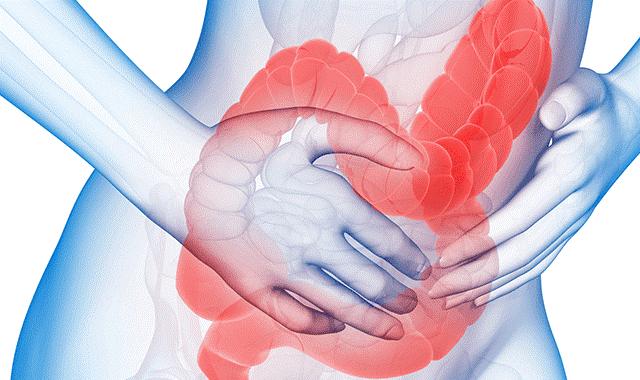 Thông tin cần biết về bệnh hội chứng ruột kích thích 1
